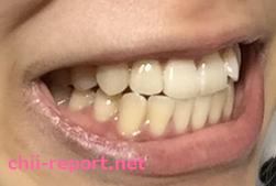 【ホワイトニング前】黄ばんだ汚い歯