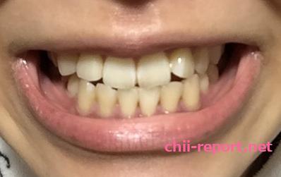 歯のホワイトニングをする前