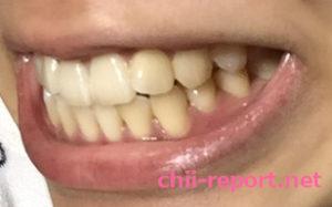 ホワイトニング前のステイン(着色汚れ)が付いた歯