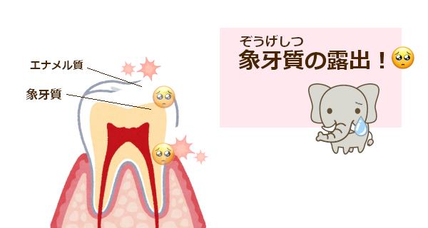 エナメル質がはがれるとホワイトニングが痛むから注意!