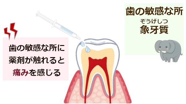 象牙質にホワイトニング薬剤が触れると痛む!