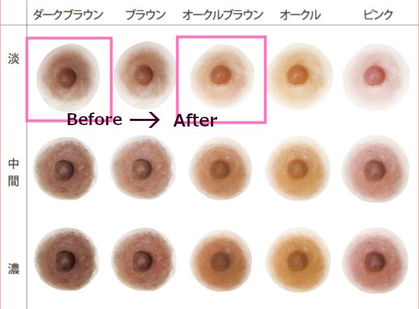 グラミープラスで乳首の色が薄くなった!