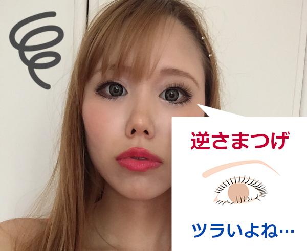 逆さまつ毛の手術【体験レポート】